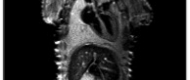 MRI- T1 weighted  (76μm/pix)